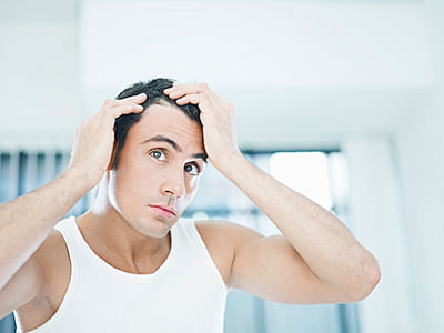 How can young men prevent hair loss?