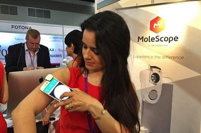 Smartphone device can catch skin cancer early