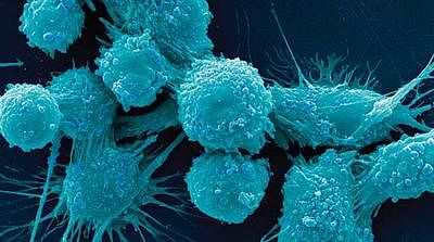 Gene family turns cancer cells into aggressive stem cells