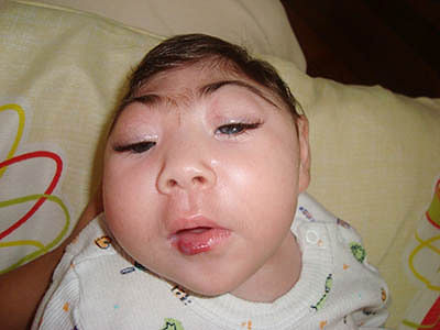 Zika virus may cause eye abnormalities in infants