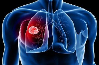 Autoantibodies may lead to early detection of lung cancer