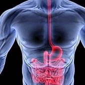 How a gut infection may produce chronic symptoms