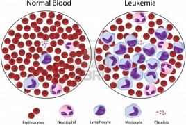 AI tracks down acute myeloid leukemia