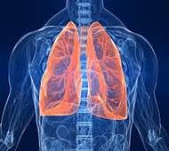 Early detection can raise lung cancer survival rate