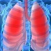 High fibre, yogurt diet reduces lung cancer risk