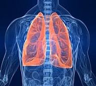 'Women more prone to lung cancer than men'