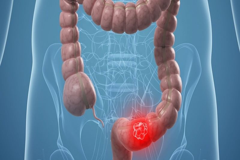 Now, a triple-therapy patch to keep colon cancer at bay