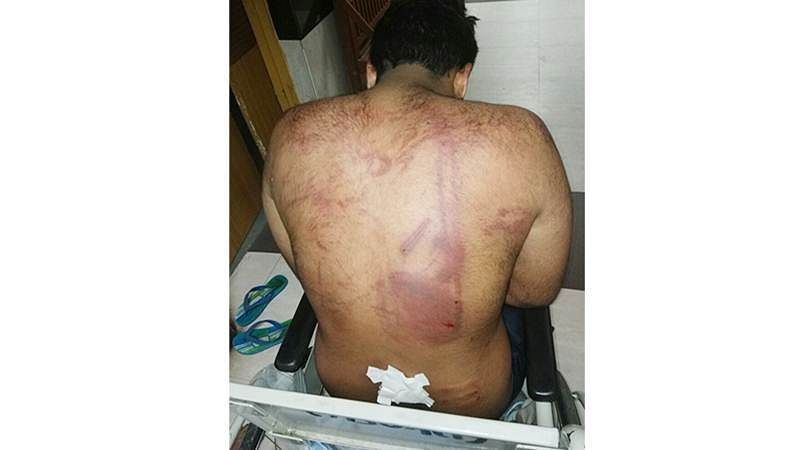 Mumbai: Andheri man assaulted at a Hookah bar
