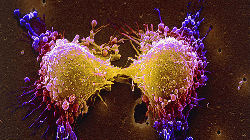 Scientists aim at slowing down the growing cancer cells
