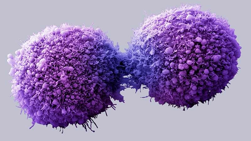 Gold nanoparticles can help deliver drugs into cancer cells
