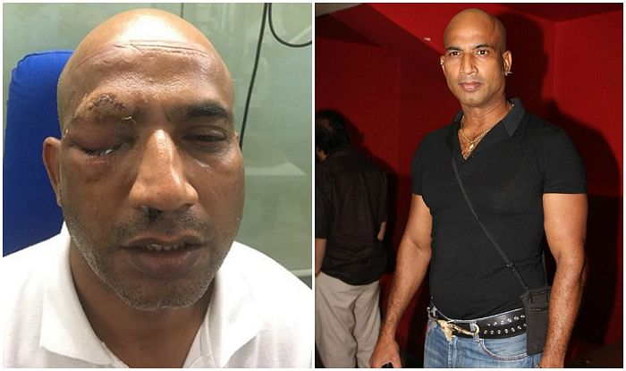 Actor Jeetu Verma attacked in Rajasthan; eye damaged, may never be able to see again
