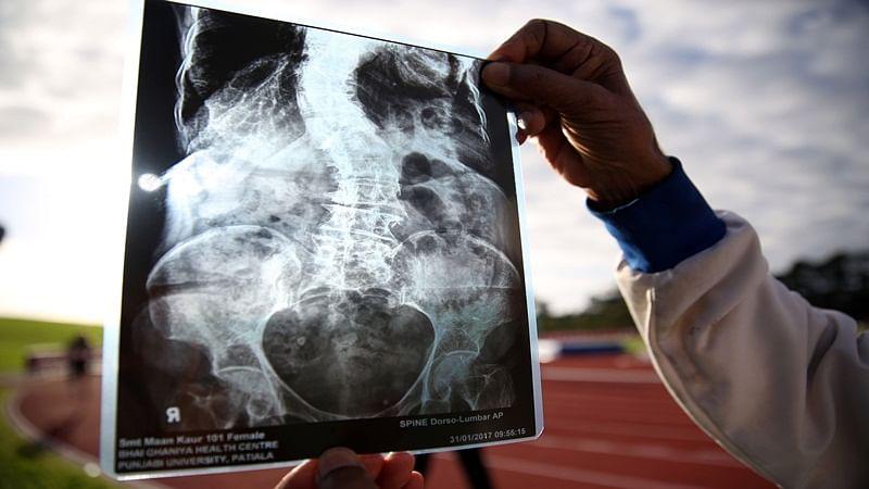 Madhya Pradesh: Villagers in Gandhwani at risk as X-ray facility runs out of corona testing kits, machine lies defunct