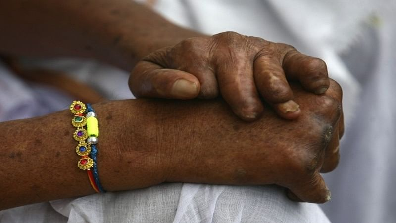 Leprosy takes lot more than touch to transmit, cases reduce by 19% in Mumbai