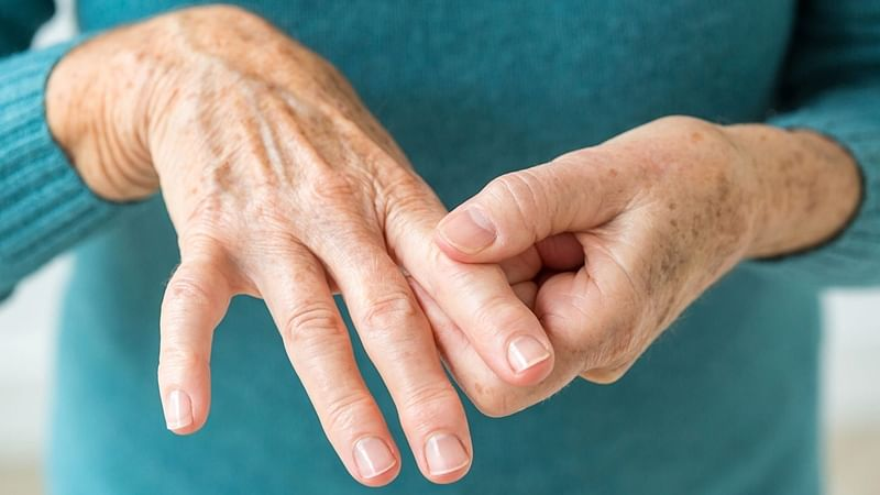 More rheumatoid arthritis cases among youth in recent years