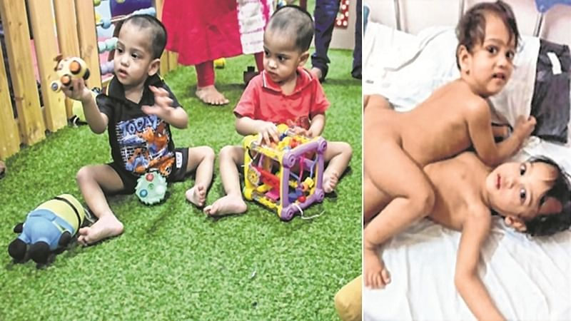 Mumbai: Conjoined twins Love and Prince ready for discharge from hospital, after six weeks of surgery
