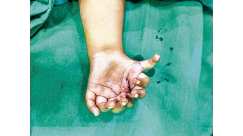 Mumbai: Nine-month-old baby undergoes complicated plastic surgery for missing thumb