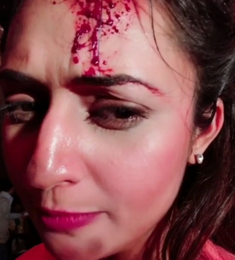 OMG! Divyanka Tripathi gets hit by a rock on the sets of 'Yeh Hai Mohabbatein'; Watch Video!
