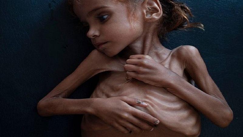 Over 85,000 children 'dead of starvation, illness in Yemen'