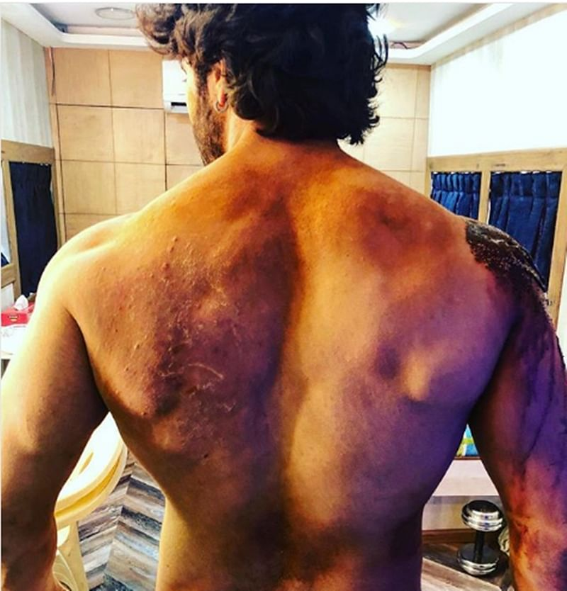 Varun Dhawan injured badly while shooting for Kalank, actor shares pictures of 'battle scars'