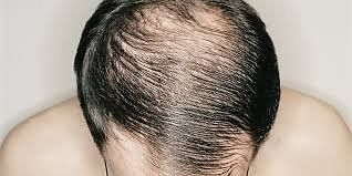 Indore: Concerns over 'hair' apparent