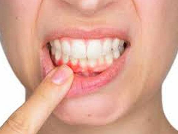 New procedure could help regrow tissue lost to periodontal disease
