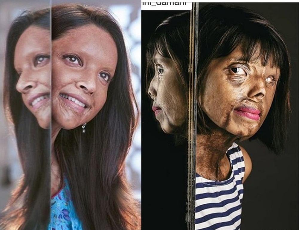 Deepika Padukone's 'Chhapaak' photo inspired by Mumbai's acid attack survivor Anmol Rodriguez