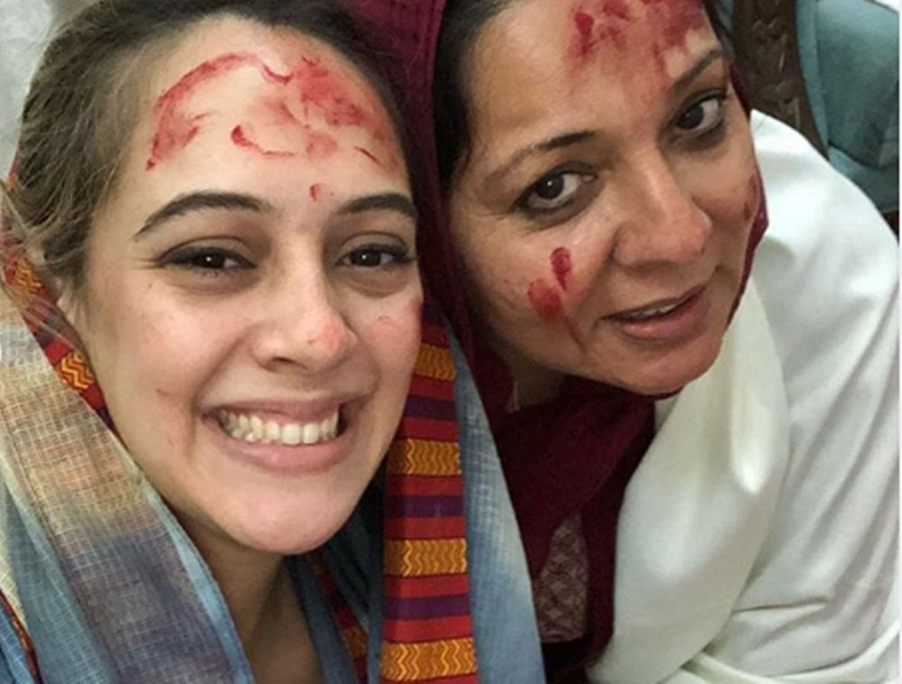Yuvraj Singh's wife Hazel Keech gets a nose job encouraged by mother-in-law; find out why