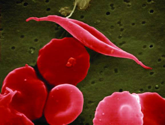 Why sickle cell disease patients are at severe risk of COVID-19