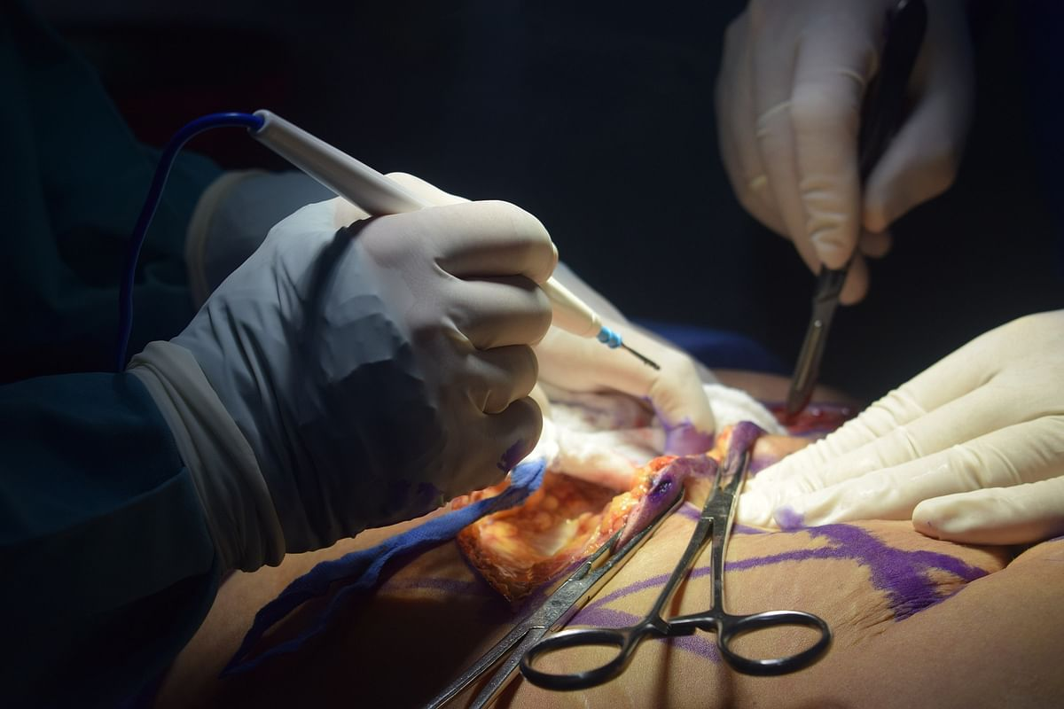 In a first, advanced laparoscopic surgery conducted at MCCH Anantnag