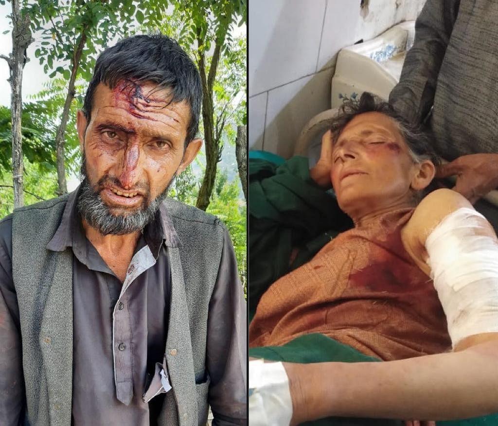 Two injured in separate bear attacks in J&K's Banihal