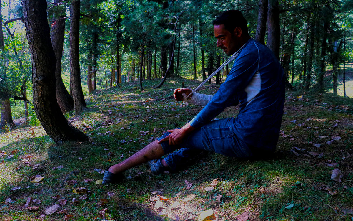 Showkat Ahmad, a youth from Qazipora village in north Kashmir's Baramulla district shows a wound  he suffered in his leg in a leopard attack.