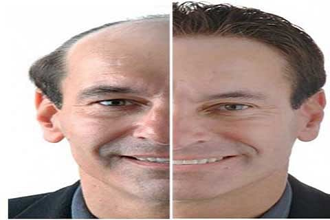 An Effective Hair Restoration Technique