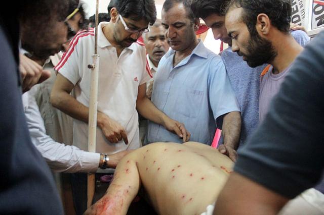 Pellet Terror Continue In Kashmir