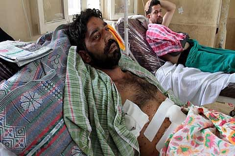 'War-like situation', says AIIMS specialist on pellet injuries