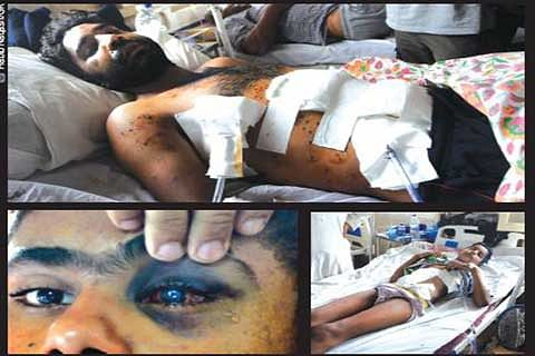 4 Sopore men injured by pellets brought to SMHS