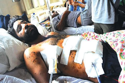 """""""Govt to shift patients with serious injuries outside state"""""""
