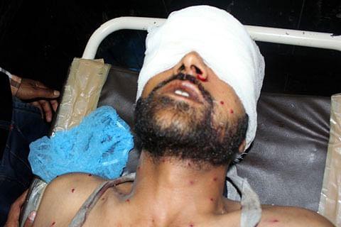 GoI forms 7-member expert team to explore alternatives to pellet guns used in Kashmir