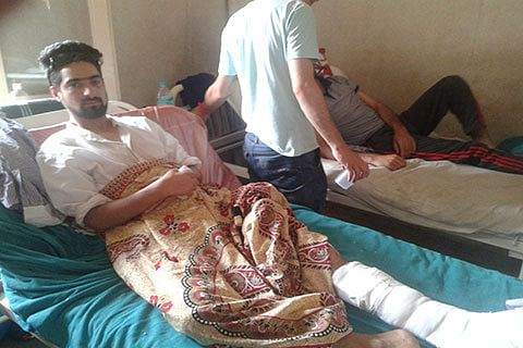 'I fell down as pellets hit my eye; they fired thrice at me'