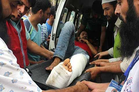 Hit by pellets, Ishfaq may limp for life