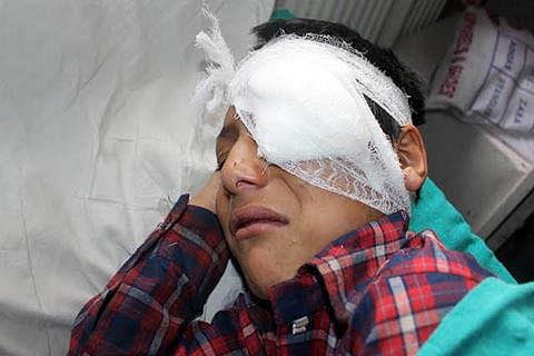 Lethal Pellet: Eye injury cases swell again, force postponement of scheduled surgeries