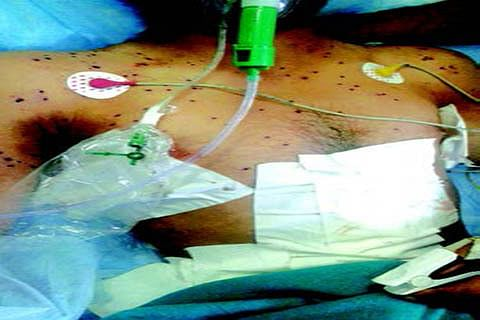 Hit by pellets 'almost everywhere', Pulwama boy battles for life