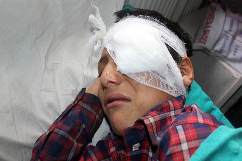 Four injured in Kulgam clashes