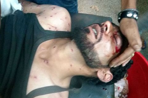 Engineering student among two hit by pellets in Anantnag
