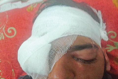 Pellets snatch both eyes of Srinagar youth