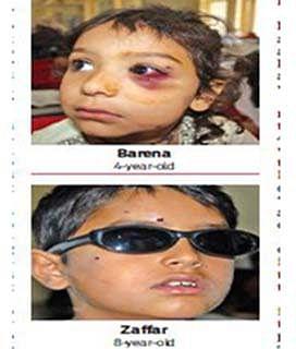 4-yr-old Barena, brother Zaffar fresh pellet victims