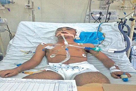 Hit by teargas shell, 14-year-old battles for life