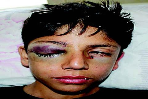 Pellets in eye, 12-yr-old asks: Why did they shoot at me?