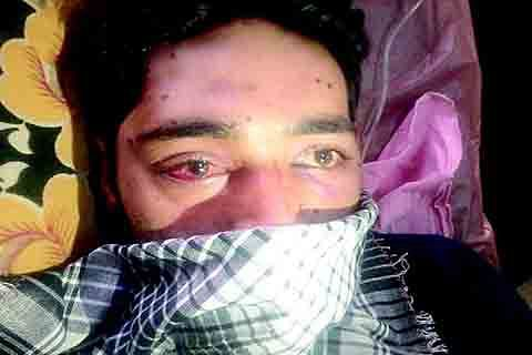 First Bullet and now Pellet: Pulwama Youth Battles It All
