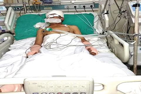 Hit by teargas shell, 76-year old man battles for life at SKIMS Soura