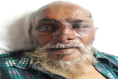 Police appeal to public to help identify elderly man admitted at SKIMS